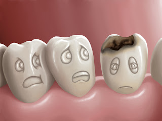 Penyakit Sakit Gigi